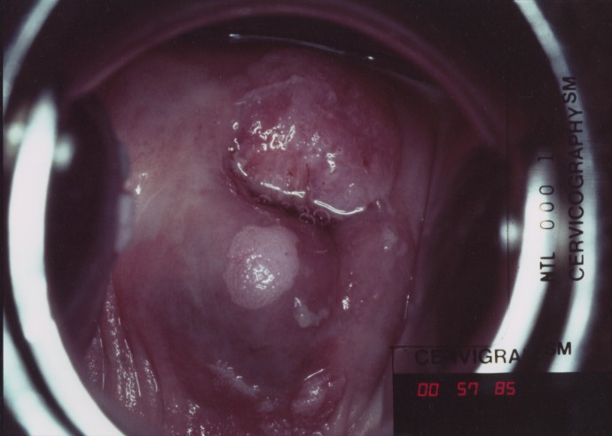 Cervix Coming Out Of Vagina